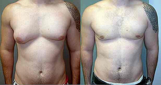 Männern brustvergrößerung bei Brustverkleinerung bei