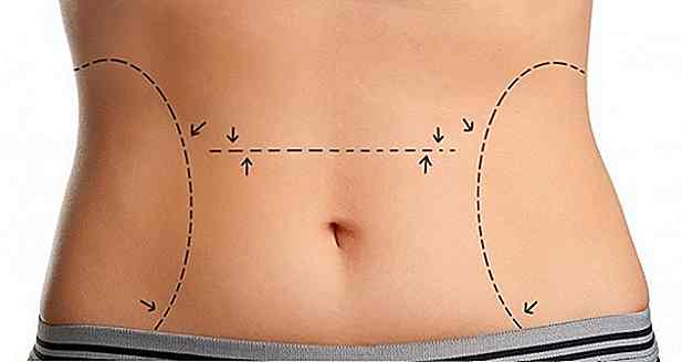 perdere peso guadagnato da ssride
